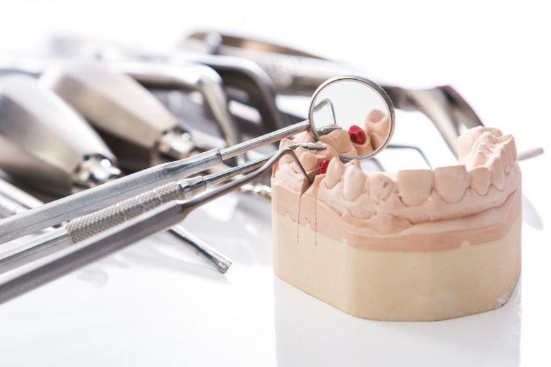 Parodontolog zdravi bolezni dlesni